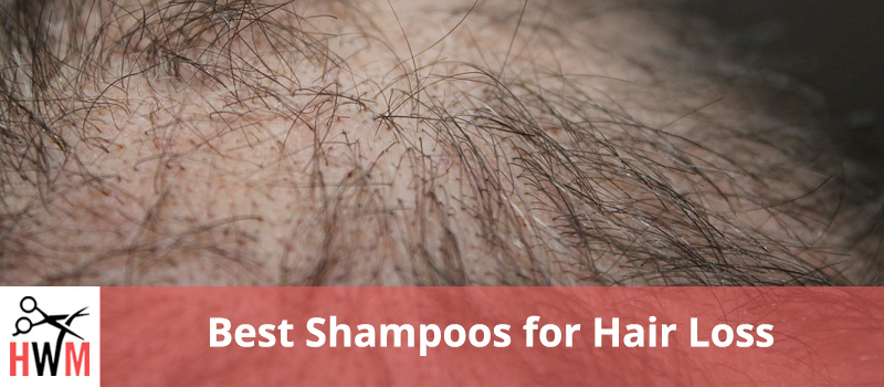 10 Best Shampoos for Hair Loss