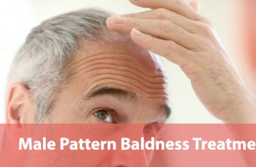 Male-Pattern-Baldness-Treatments