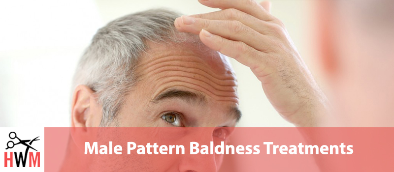 9 Most Effective Male Pattern Baldness Treatments