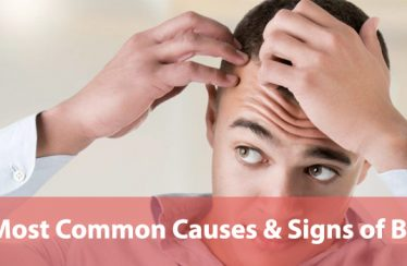 Most-Common-Causes-&-Signs-of-Balding3