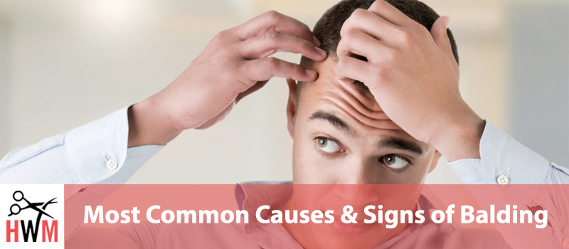 Most Common Causes & Signs of Balding