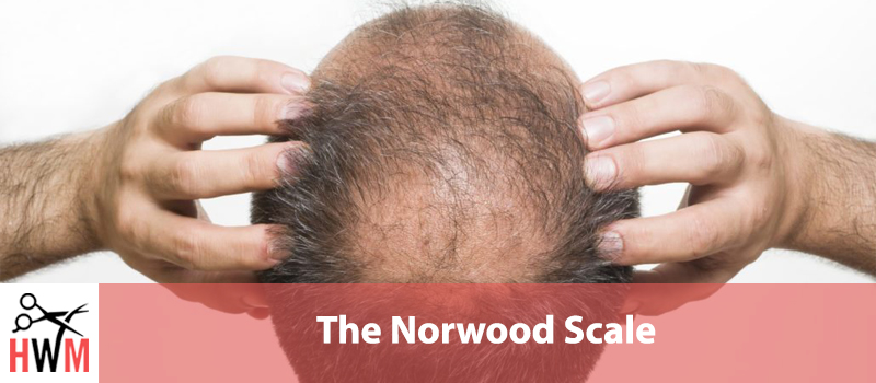The-Norwood-Scale