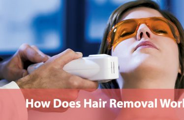 How-Does-Hair-Removal-Work
