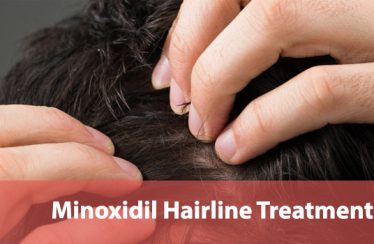 Best-Minoxidil-Hairline-Treatments
