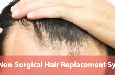 Non-Surgical-Hair-Replacement-Systems