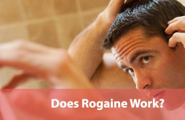 Does Rogaine Work