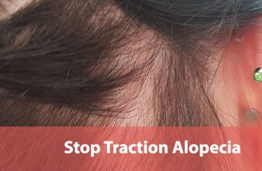 How to Stop Traction Alopecia