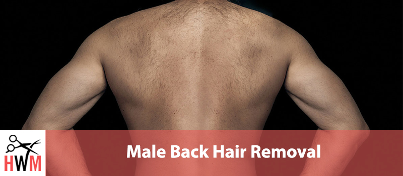 Best Male Back Hair Removal Options