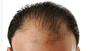 What Kinds of Hair Loss is Rogaine Good For