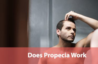Does Propecia work