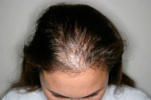 Easy Signs of Diffuse Hair Loss