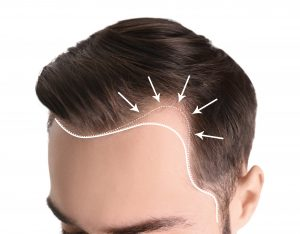 Hair Loss Patterns