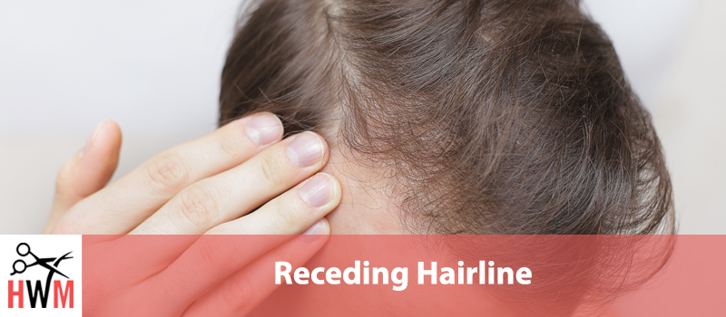 Receding Hairline – Understand Your Hair Loss and Take Control