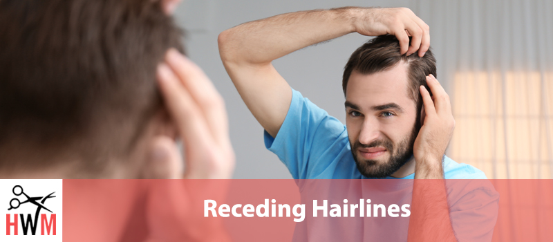 Receding Hairlines – What You Need to Know to Stop It