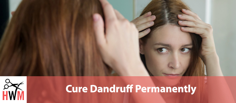 Cure-Dandruff-Permanently