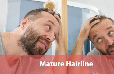 Mature Hairline