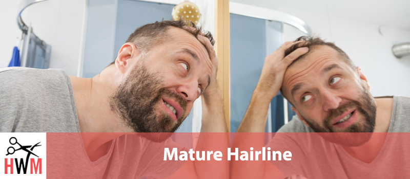 What is a Mature Hairline and What Does it Mean for You?