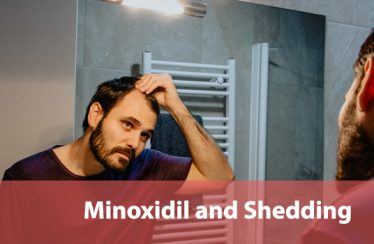 Minoxidil and Shedding