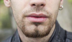 Hair Follicle Density