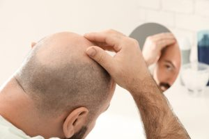 Are You the Right Candidate for A Hair Transplant