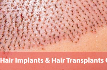 Guide-to-Hair-Plugs-Hair-Implants-&-Hair-Transplants