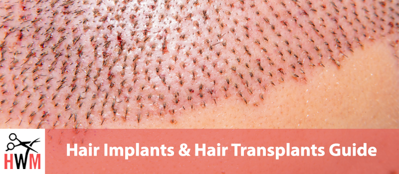 The Ultimate Guide to Hair Plugs, Implants, & Transplants