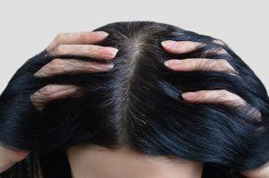 Improper Hair Maintenance