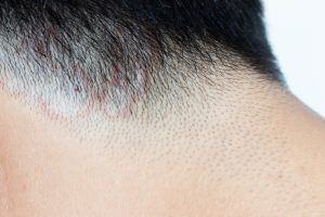 Sebum Buildup Can Cause Infections